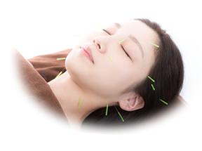 女性の美容鍼の施術写真